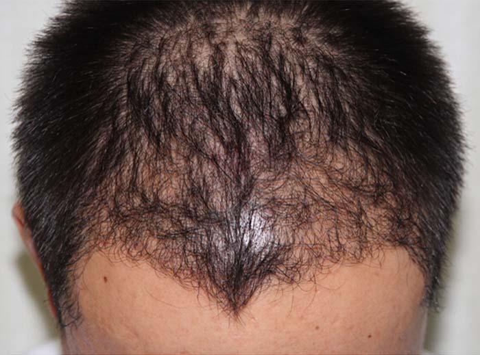 吴先生的头发种植逆袭之路